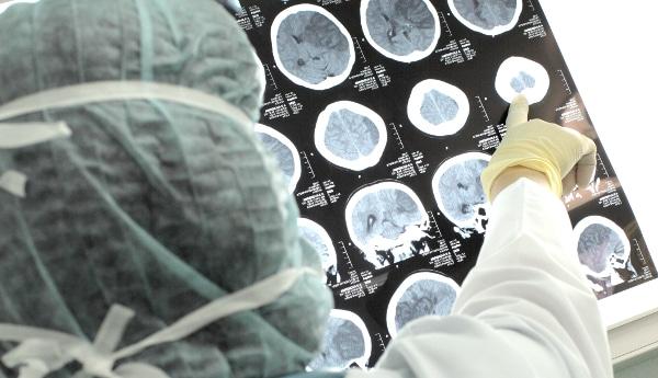 αποκατάσταση εγκεφαλικού